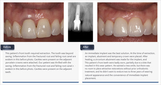 thumb_implant_crowns