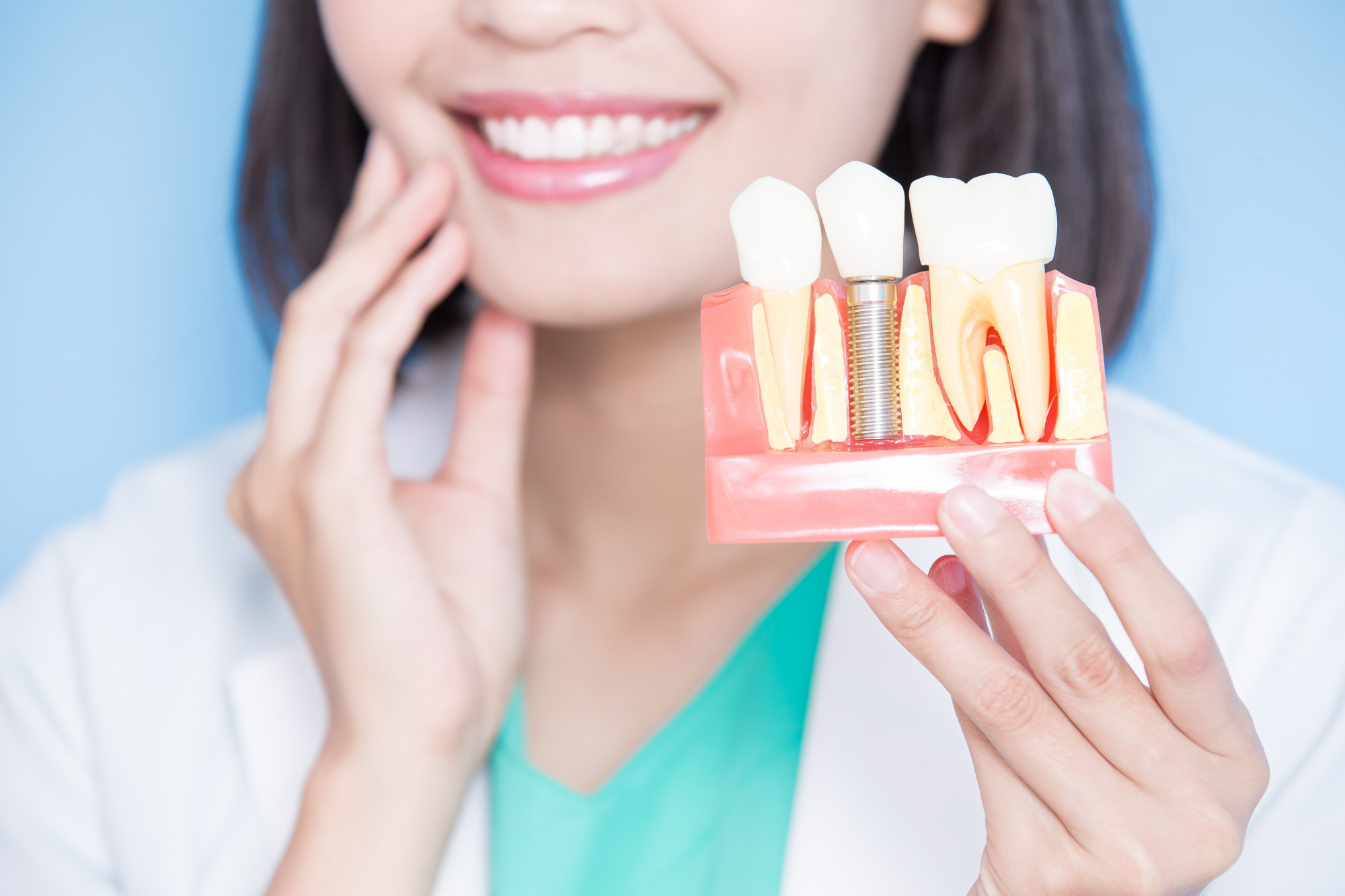 dental implants in seattle